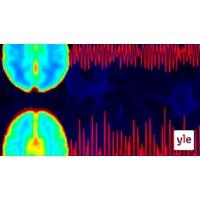 Logo of the podcast Aivojen puhdistuminen lisääntyy unessa. Mitä tapahtuu, jos aivoihin jää kuona-aineita?