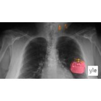 Logo of the podcast Vagushermo rauhoittaa sydäntä ja mieltä – miksi? Voiko vagushermoa stimuloida ja hoitaa sairauksia?