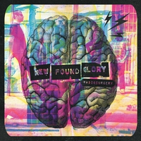 Cover of the track Radiosurgery (Deluxe Edition)